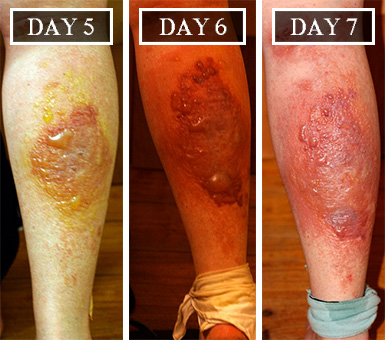 burns 5, 6 and 7 days after contact with giant hogweed sap