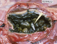 photo of lead fishing weight in loon gizzard